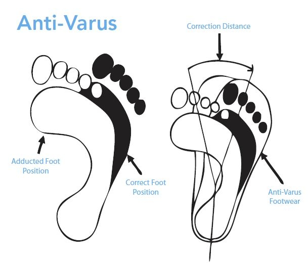 Anti-Varus Last Diagram